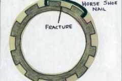 Apr/May 2021 -R-M-Macleod-retainer-repair-with-horseshoe-nail-